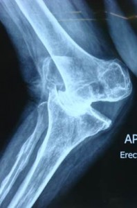 Total Knee Replacements in Mumbai - Dr. Sanjay Agarwala